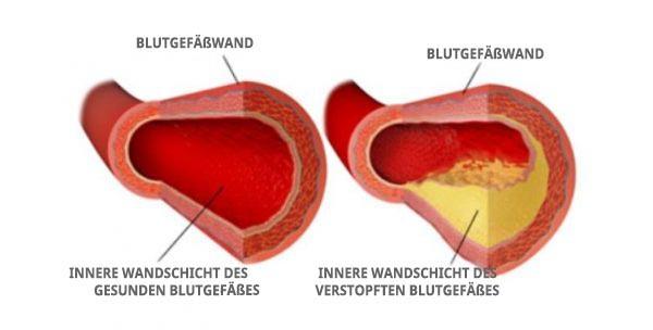 Cholesterin und Blutgefäße