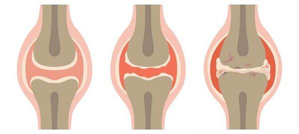 symptome bei arthrose