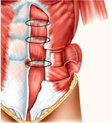 Bauchmuskel - Die Muskelfasern