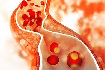 ballaststoffe verhelfen zu optimalen cholesterinwerten
